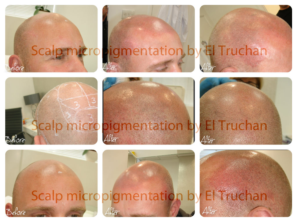 Hair Symulation by El Truchan