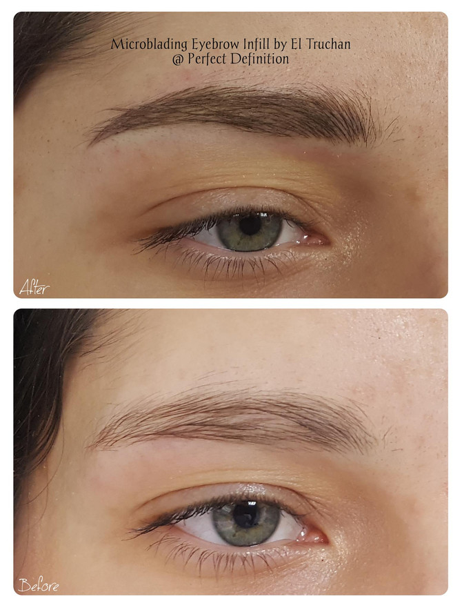 Eyebrows Microblading for Density Restoration by El Truchan @ Perfect Definition