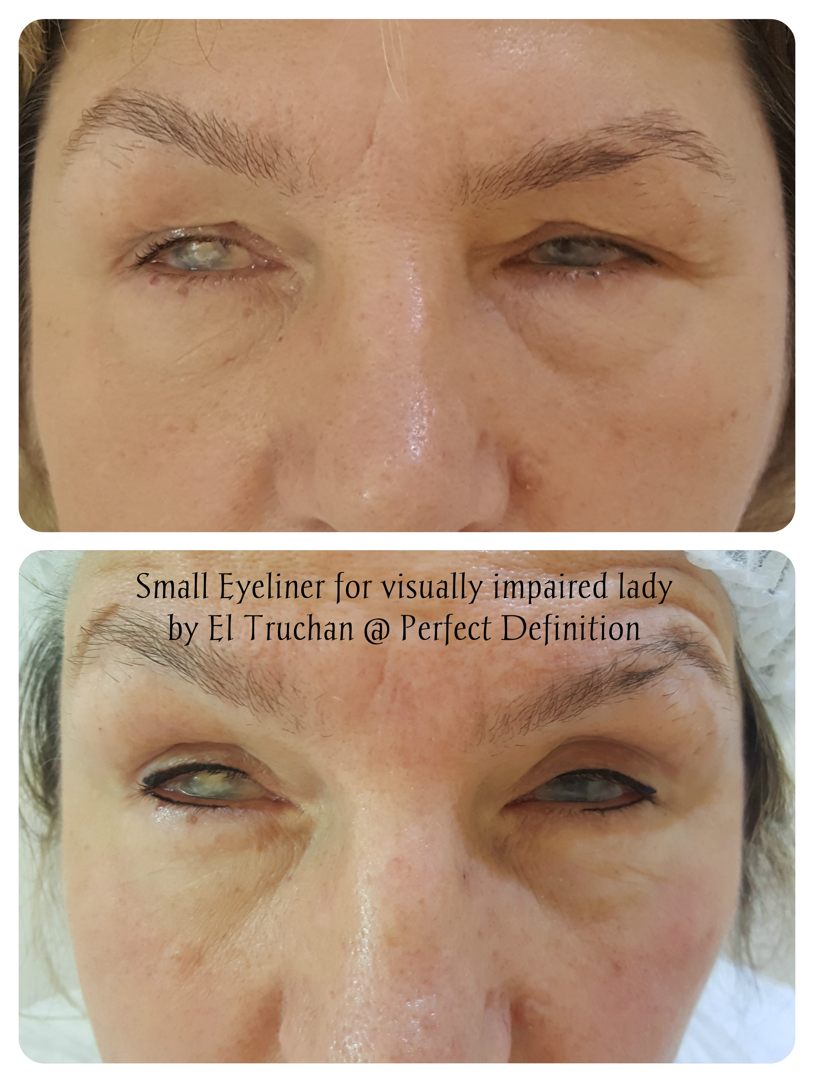 Eyeliner for Visually impaired lady by El Truchan _ Perfect Definition