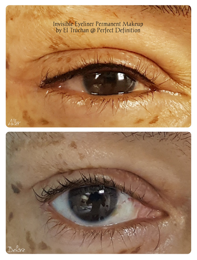 Invisible Eyeliner Permanent Makeup by El Truchan @ Perfect Definition