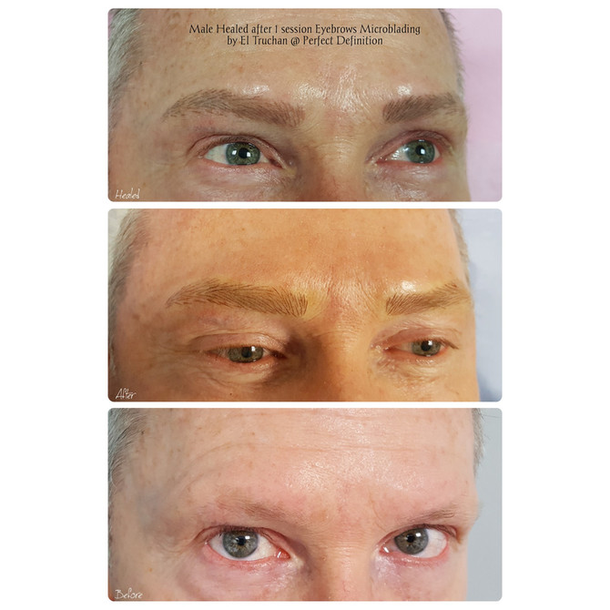 Male Healed after 1 session Eyebrows Microblading by El Truchan @ Perfect Definition