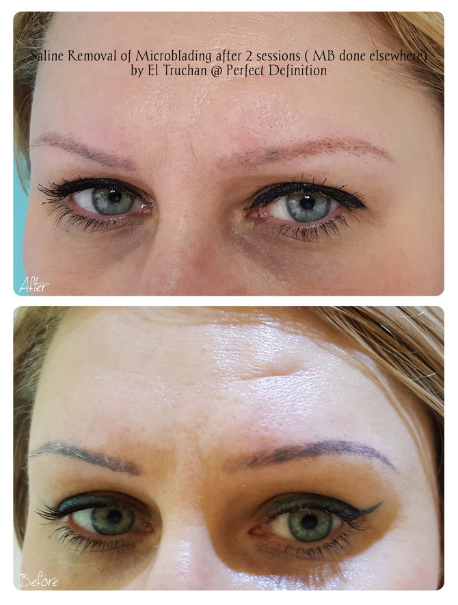 Saline Removal of Microblading after 2 sessions (MB done elsewhere) by El Truchan @ Perfect Definiti