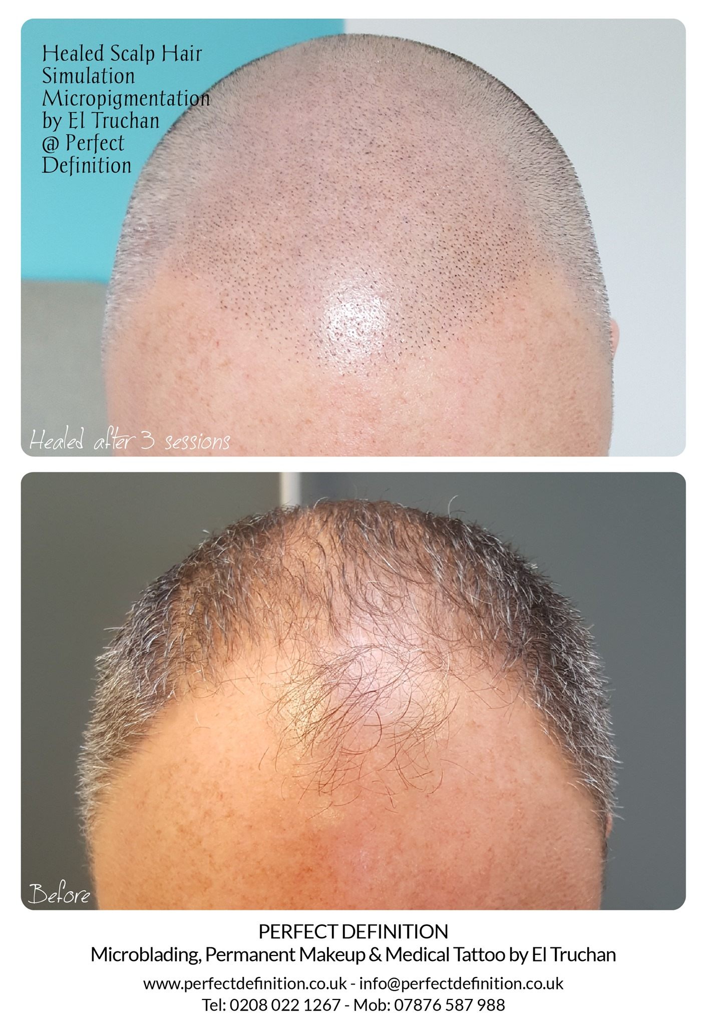 Healed Scalp Micropigmentation by El Tru