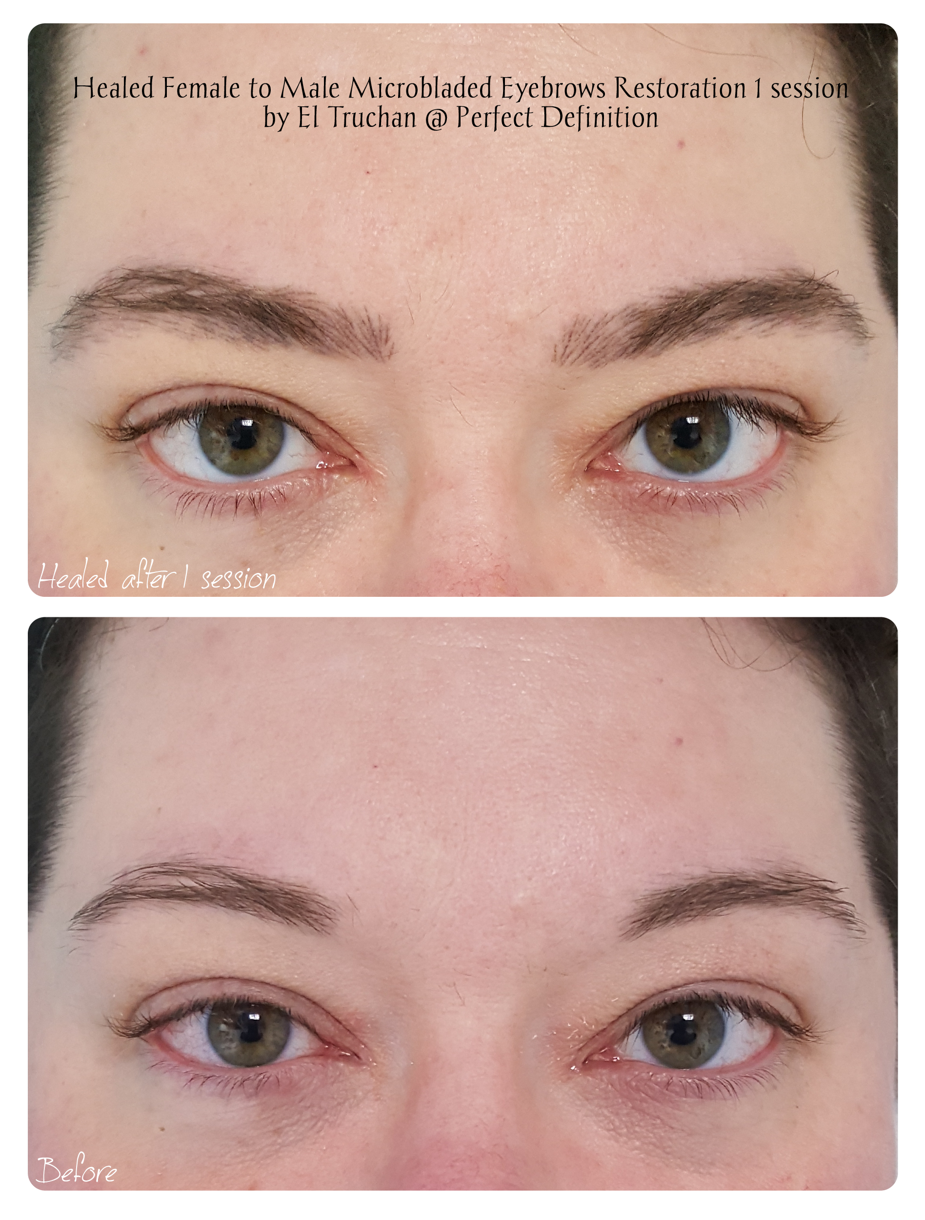 Healed Female to Male Microbladed Eyebro