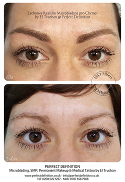 Eyebrows Realism Microblading pre-Chemo