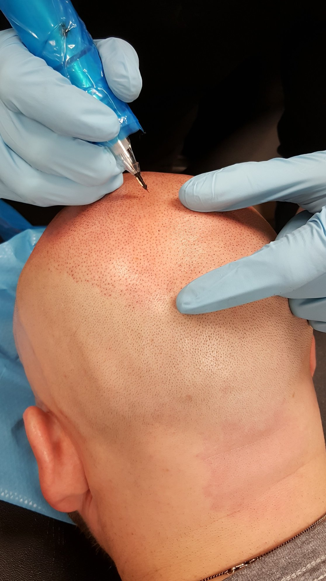 Scalp Micropigmentation 1st session prog