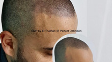 SMP - Hairline Tatoo by El Truchan at Scalp Micro Definition in London