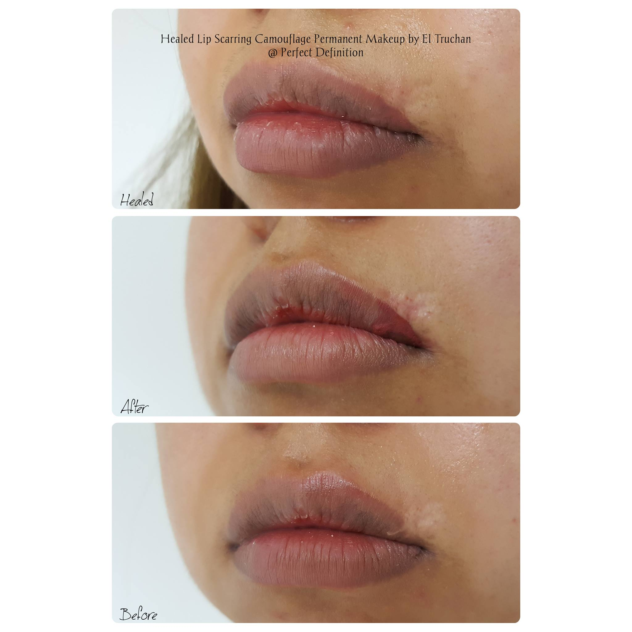 Healed Lip Scarring Camouflage Permanent