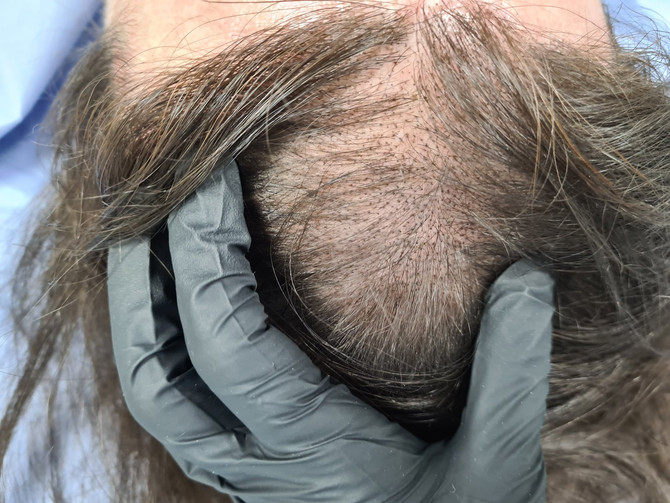 Creating SMP Density 1st session in progress by El Truchan @ Scalp Micro Definition