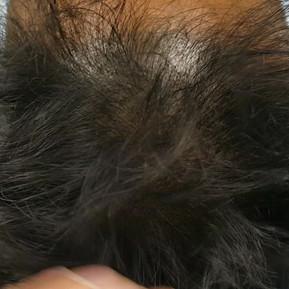 Healed Asian Scalp Micropigmentation SMP