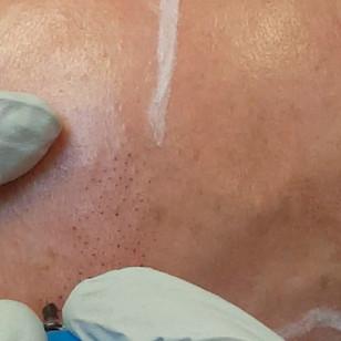 SMP Male Scalp Micropigmentation by El T