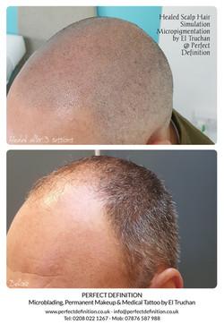 Healed Scalp Hair Simulation Micropigmen