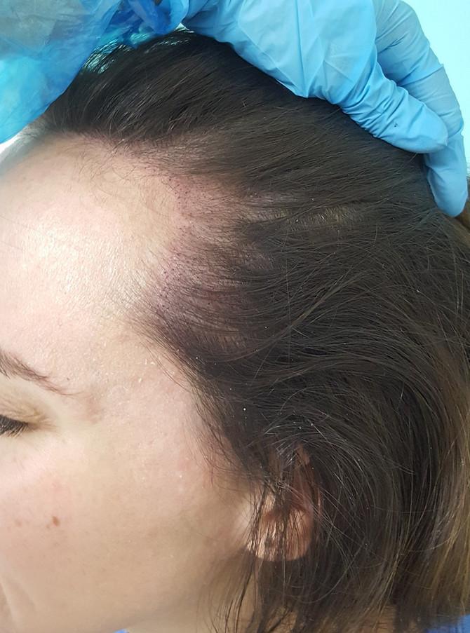 Female SMP Hairline Density restoration by El Truchan @ Scalp Micro Definition
