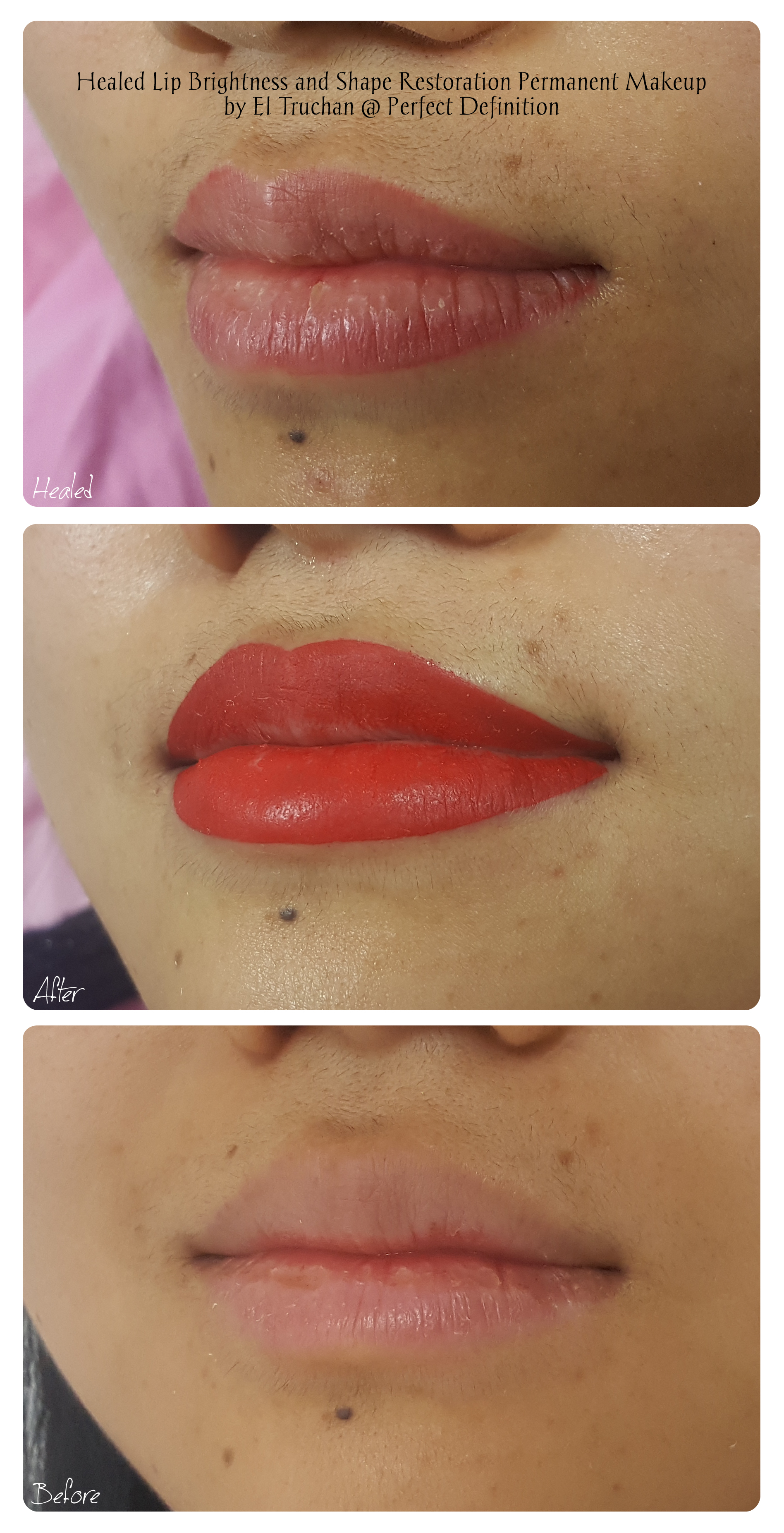 Healed Lip Brightness and Shape Restorat