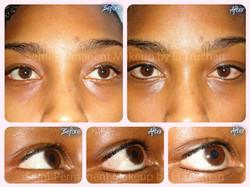 Lash Enhancement - Natural Eyeliner