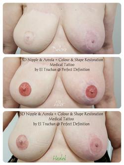 3D Nipple & Areola Healed Tattoo by El t