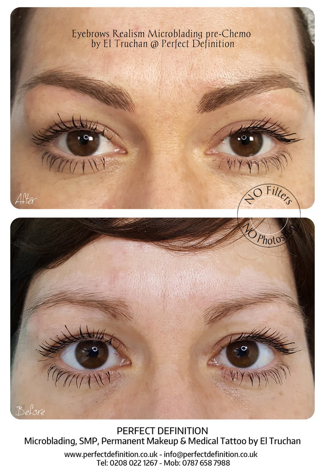 Eyebrows Realism Microblading pre-Chemo by El Truchan @ Perfect Definition