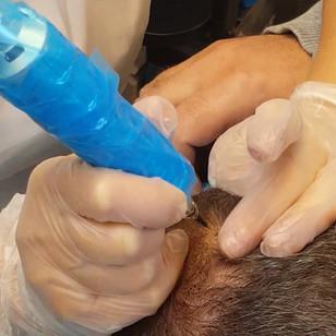 SMP Scalp Micropigmentation Male Densifi