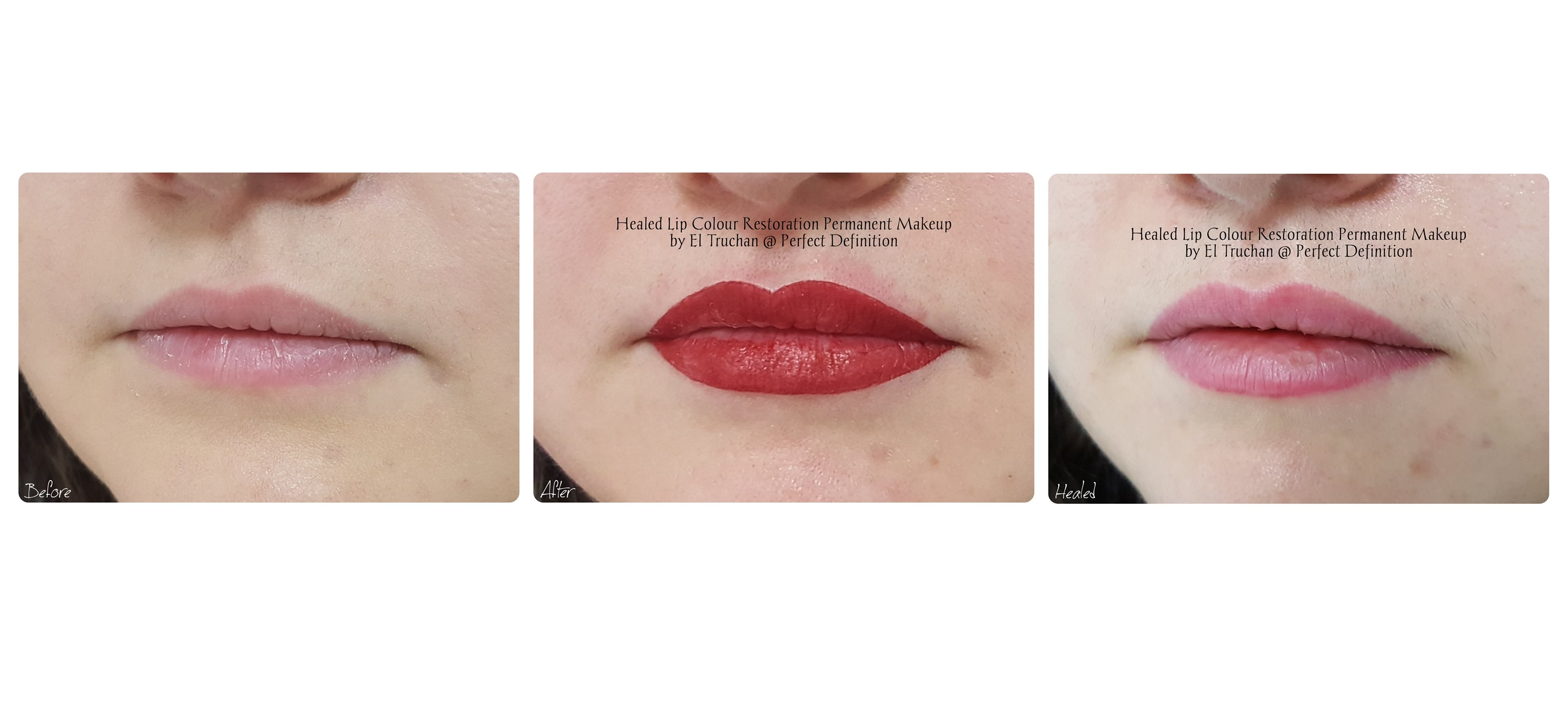 Healed Lip Colour Restoration Permanent