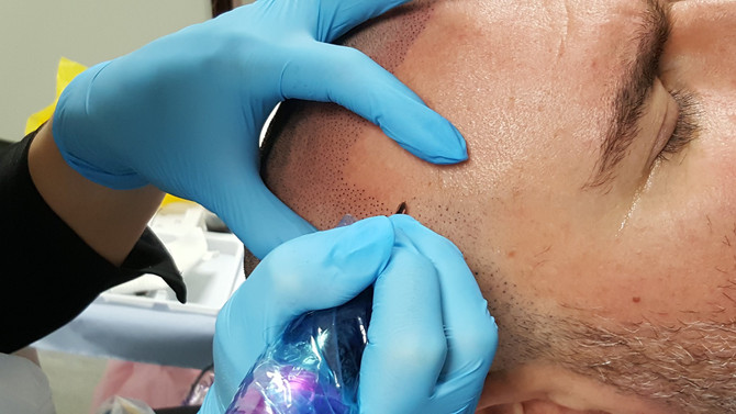 Scalp Micropigmentation SMP by El Truchan @ Perfect Definition