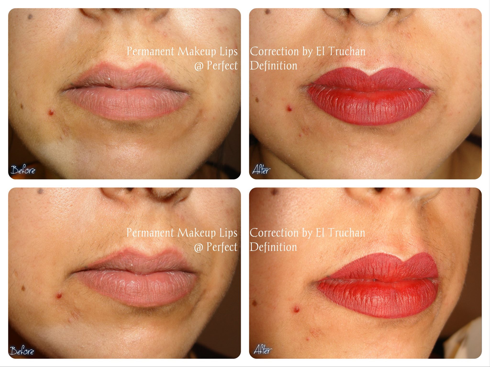 lips correction Permanent Makeup