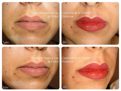 lips correction Permanent Makeup