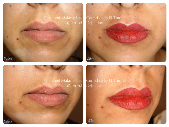 Lips Correction from previous Permanent Makeup treatment Titanium Residue: Before - After