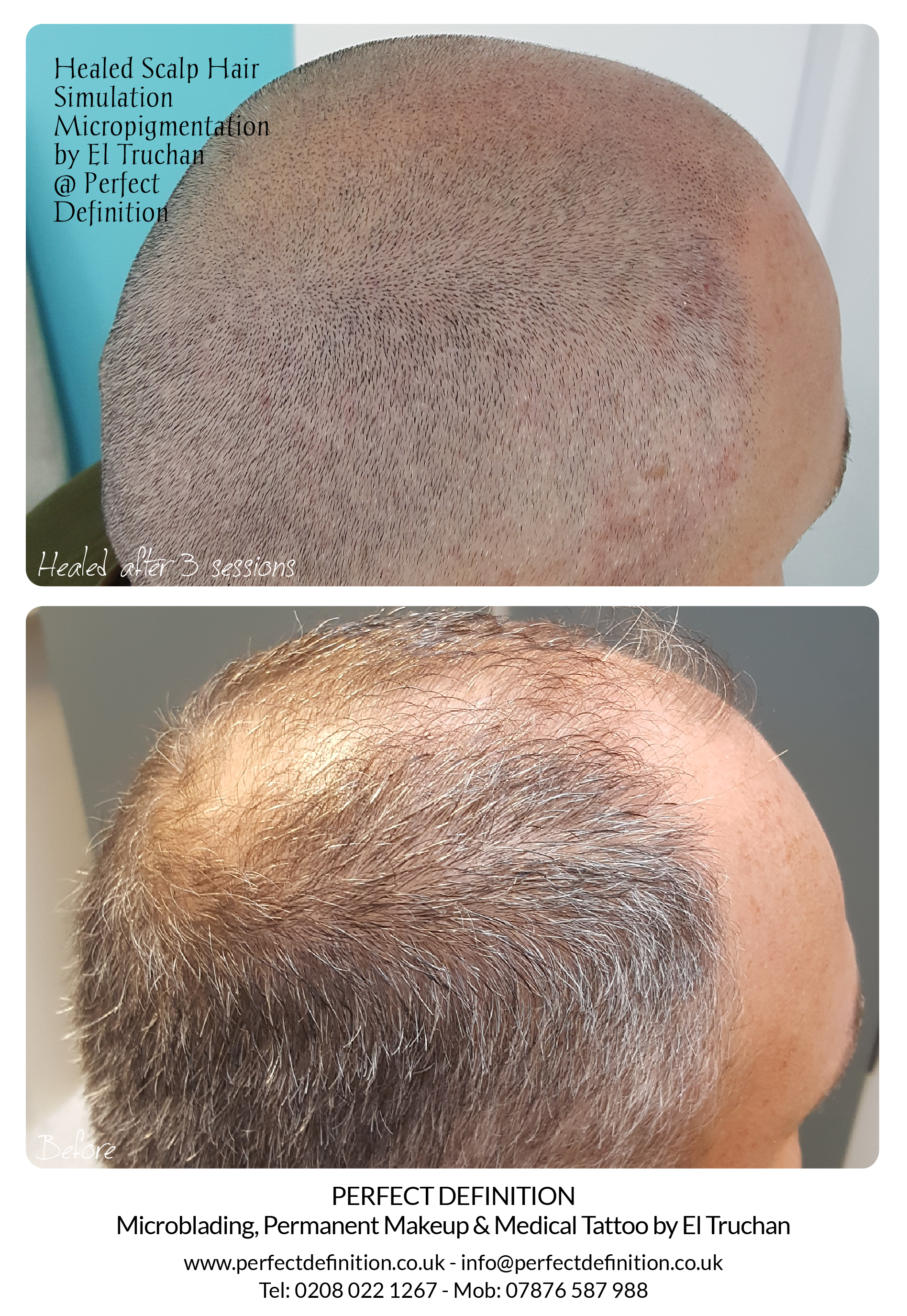 Healed Scalp Micropigmentation