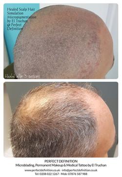 Healed Scalp Micropigmentation