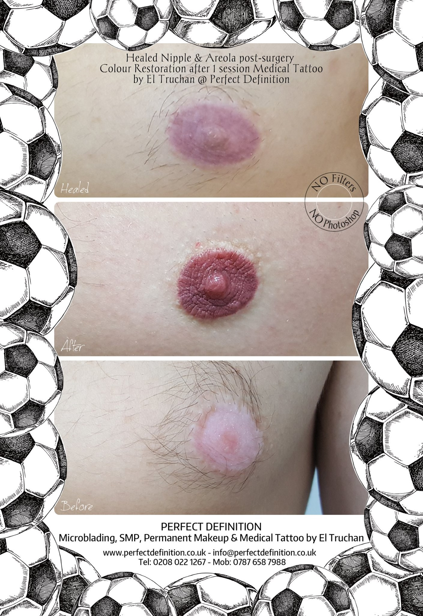 Healed Nipple & Areola post-surgery Colo