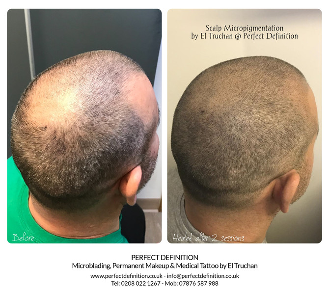 Scalp Micropigmentation SMP by El Truchan @ Scalp Micro Definition