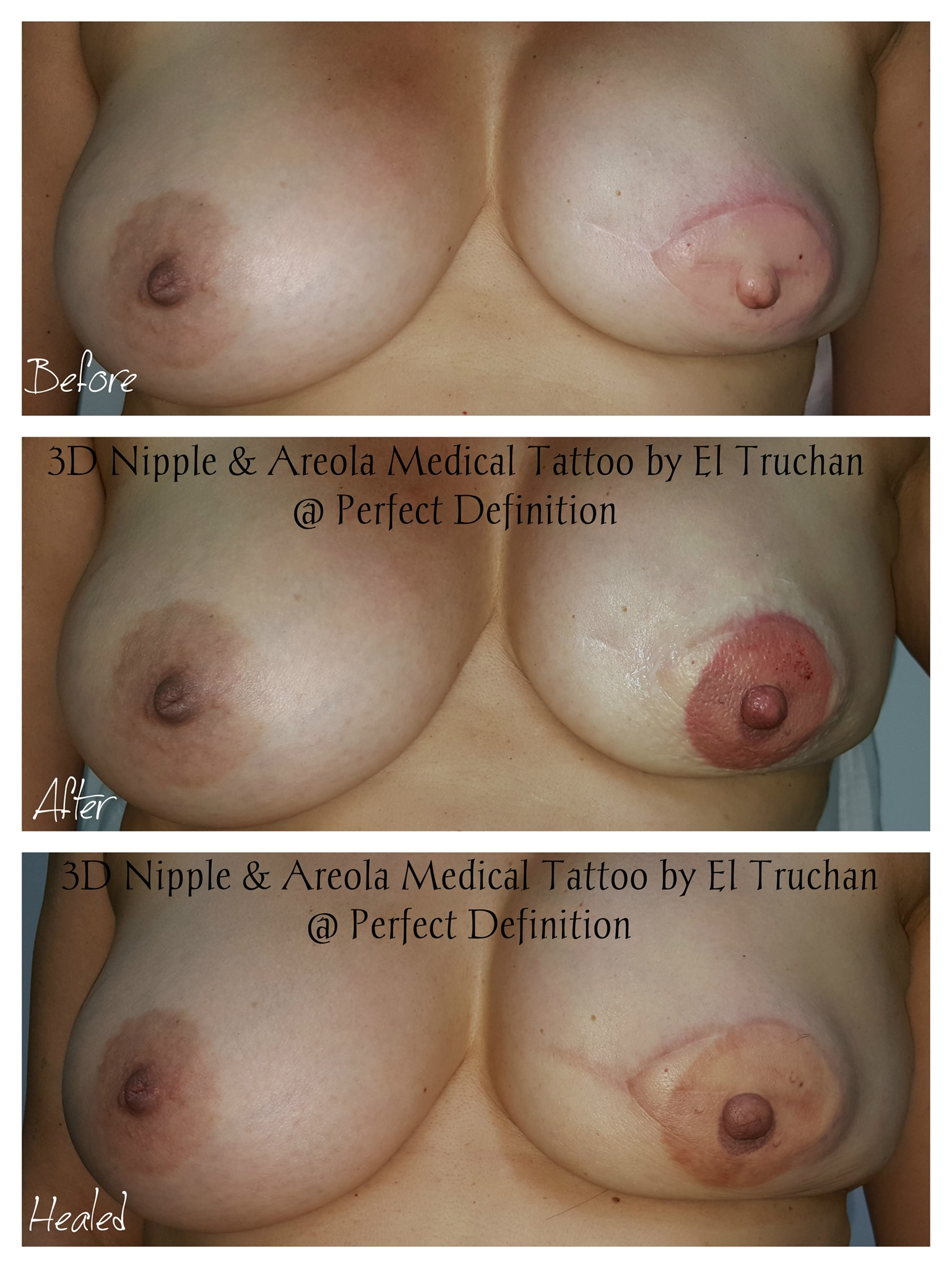 3D Nipple & Areola Reconstruction medica