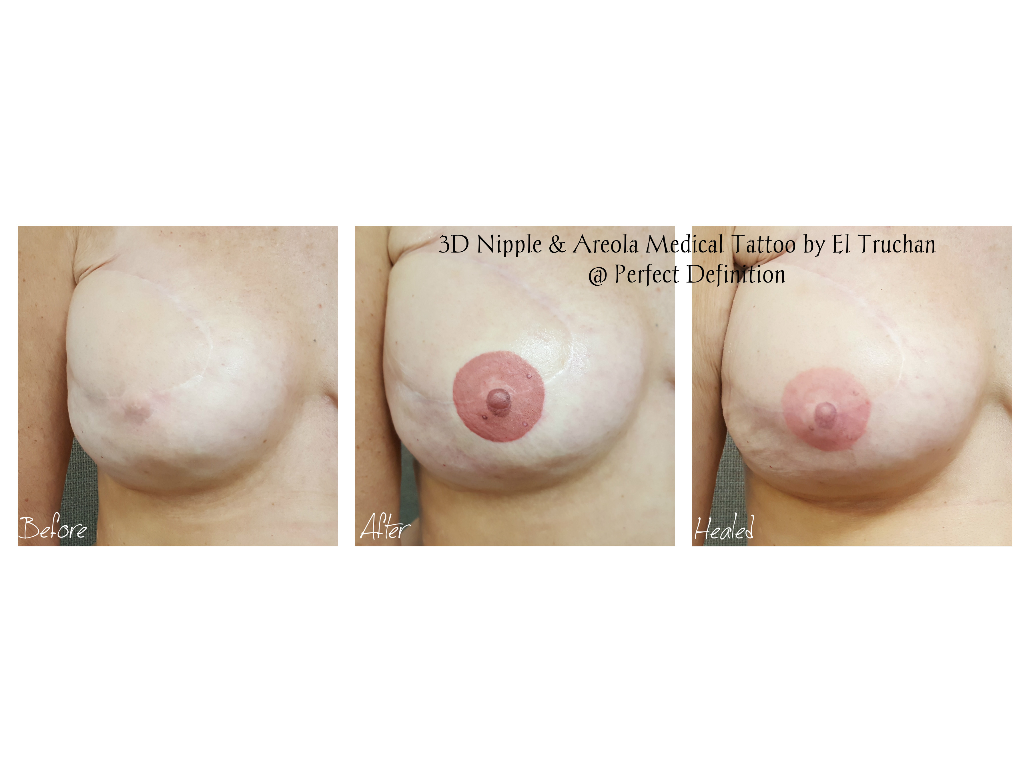 3d Nipple & Areola Medical Tattoo by El Truchan _ Perfect Definition London1