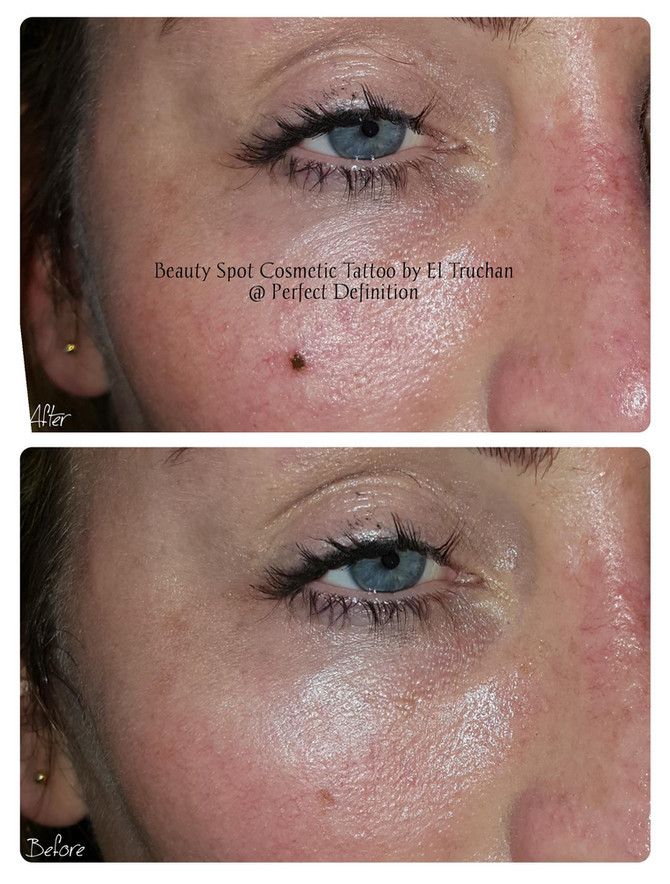 Beauty Spot Cosmetic Tattoo by El Truchan @ Perfect Definition