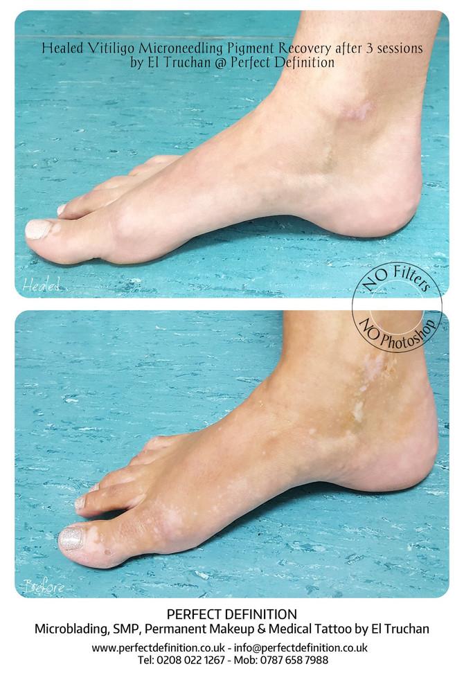 Healed Vitiligo Microneedling Pigment Recovery Restoration Medical Tattoo by El Truchan