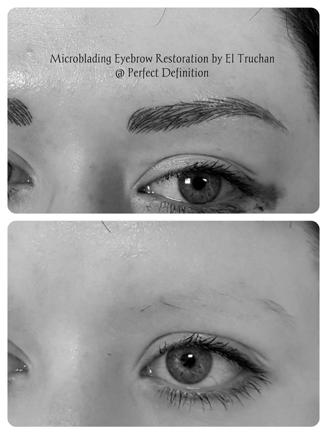 Eyebrow Hair Loss - Hairstroke Microblading by El Truchan @ Perfect Definition