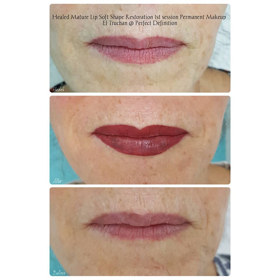 Healed Mature Lip Soft Shape Restoration