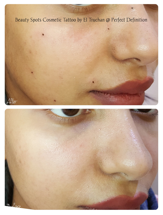 Beauty Spots Cosmetic Tattoo by El Truchan @ Perfect Definition