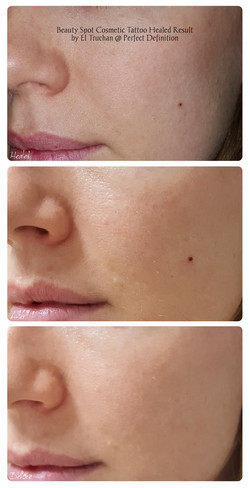 Beauty Spot Cosmetic Tattoo Healed Resul