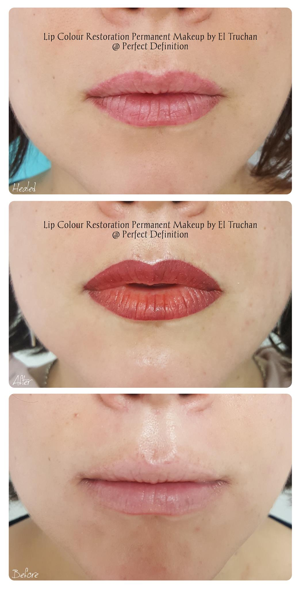 Lip colour and shape restoration