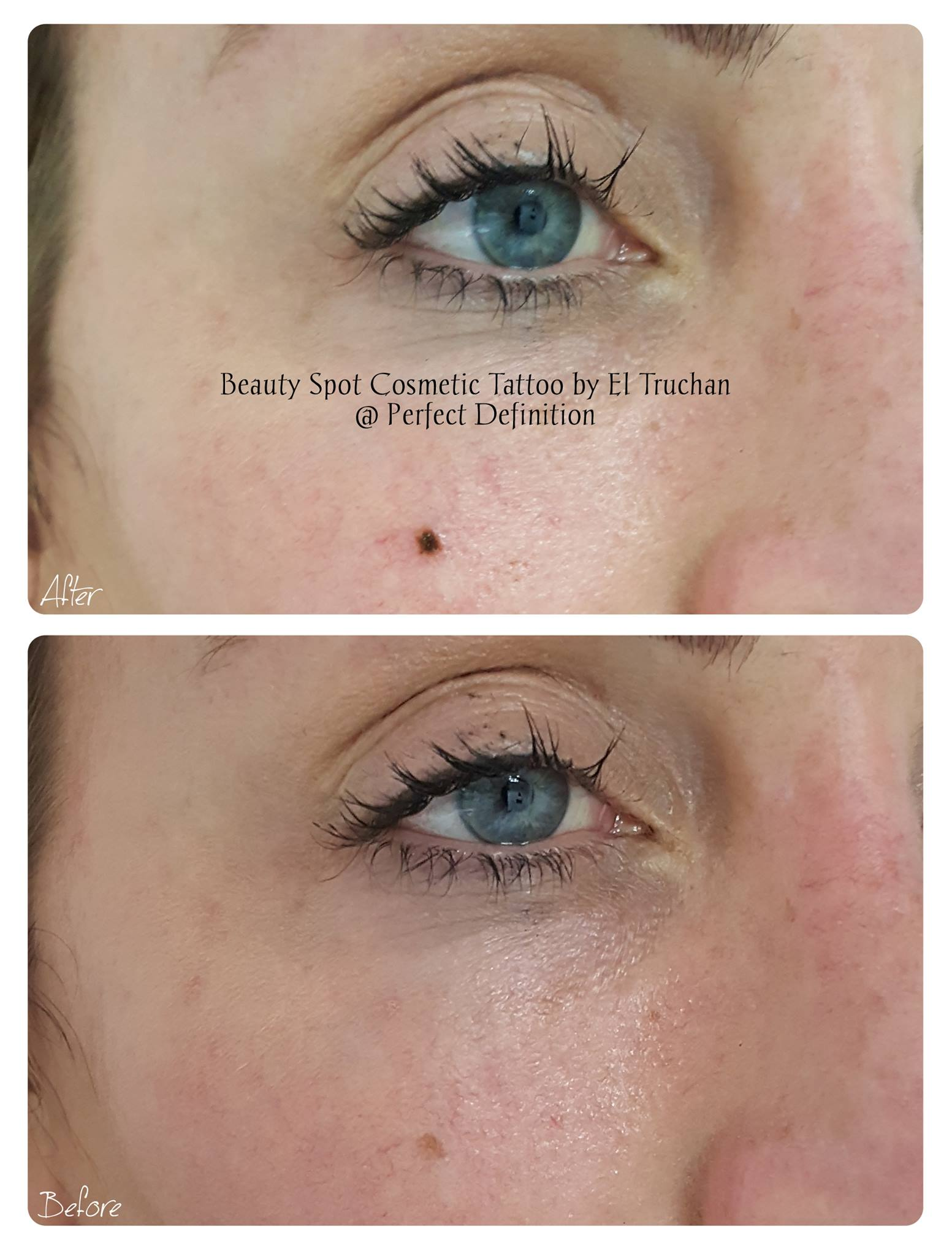 Beauty Spot Cosmetic Tattoo