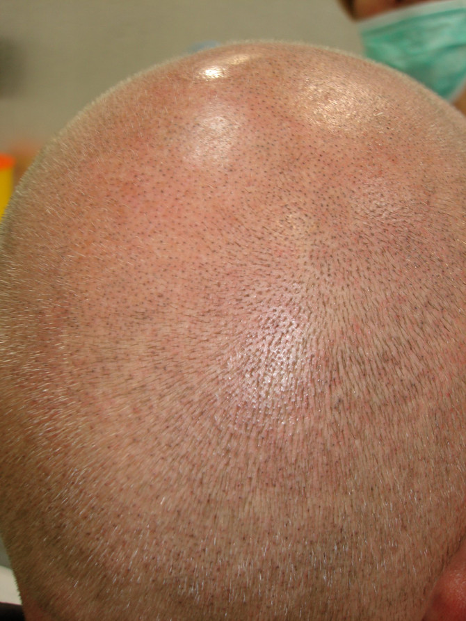 1st session Scalp Micropigmentation Blonde Hair Tattoo by El Truchan @ Scalp Micro Definition
