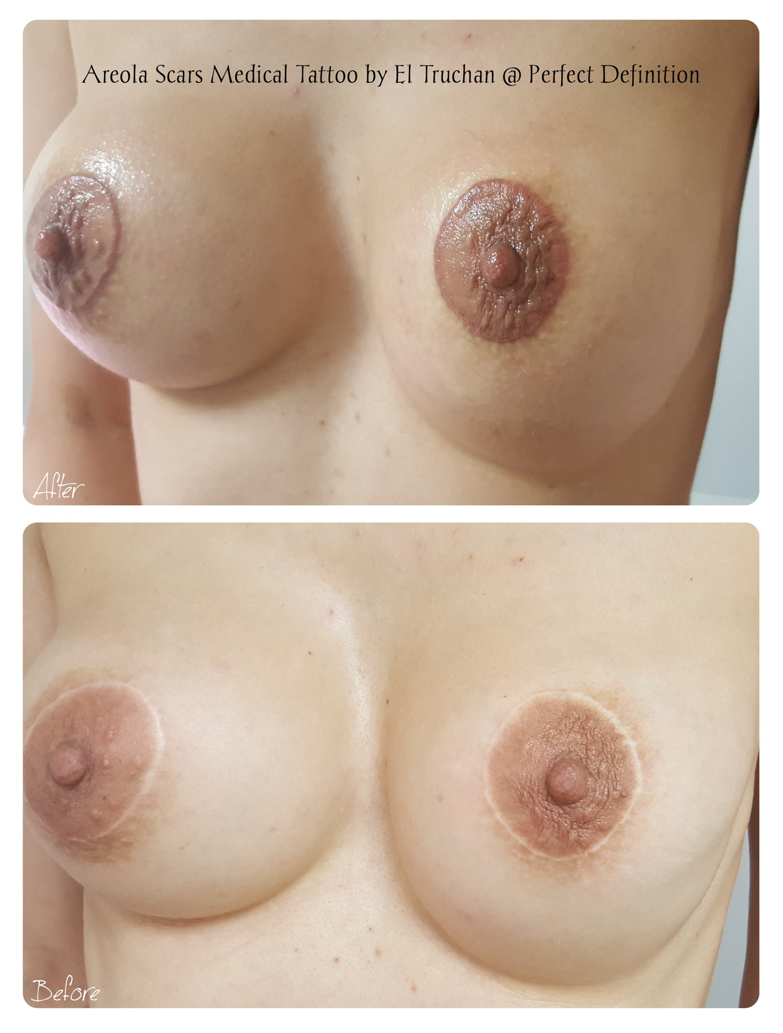 Areola Scars Medical Tattoo by El Trucha