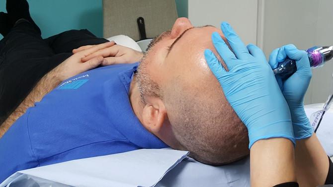Scalp Micropigmentation Hair Tattoo by El Truchan @ Scalp Micro Definition