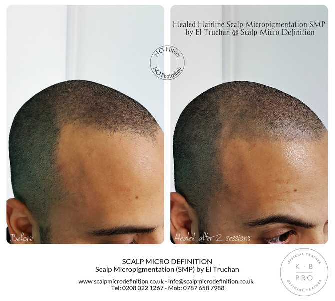 Healed Hairline Scalp Micropigmentation SMP by El Truchan @ Scalp Micro Definition