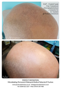 SMP -  Blond Healed Scalp Hair Simulatio