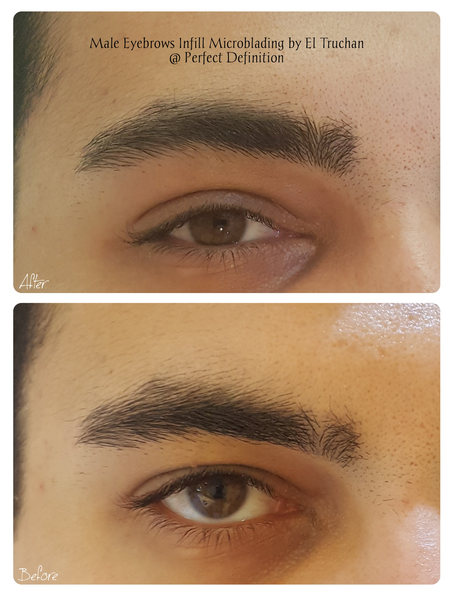 Male Eyebrows Infill Microblading by El