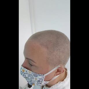 Healed SMP Female Scalp Micro Pigmenttio