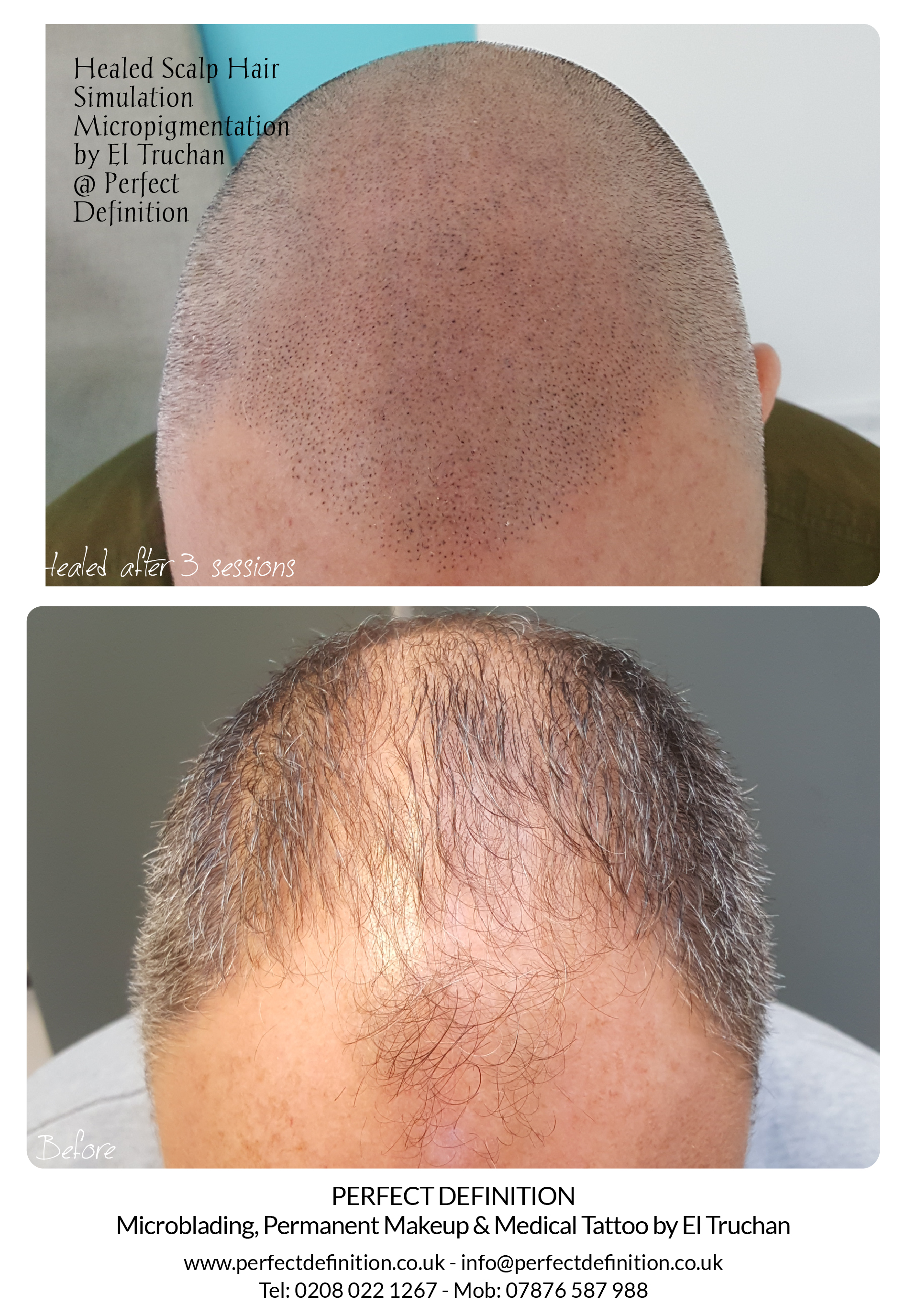 Scalp Micopigmentation