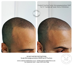Healed Hairline Scalp Micropigmentation